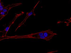 Beskrivelse: Billedet viser hjernekræftceller af typen glioblastoma multiforme i bevægelse, som er farvet for DNA (blå) og actin cytoskelet (rød). Cellen i centrum er polynukleær, hvilket vil sige, at den indeholder flere cellekerner og dermed mere DNA — hvilket ofte bliver associeret med kræft-stamceller. Og de er ret glade for at bevæge sig, hvilket kan ses på billedet ved den lange cellulære proces som strækker sig væk fra de blå cellekerner. Det er dén retning kræftcellen er på vej i. I patienter med denne type hjernekræft er det de invaderende (bevægende) kræftceller, som udgør et kæmpe problem, da man med nuværende behandling ikke kan få ram på dem. Ved at invadere det raske hjernevæv formår de at udnytte hjernens egne beskyttelsesmekanismer, som blandt andet forhindrer skadelige stoffer i at komme ind i hjernen og derved også en del mulige behandlingspræparater.