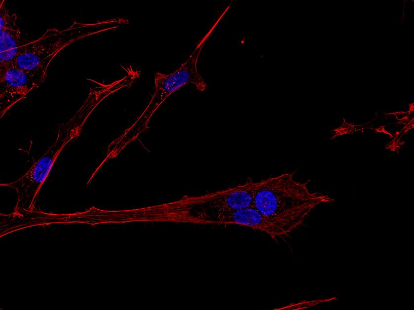 Billedet viser hjernekræftceller af typen glioblastoma multiforme i bevægelse, som er farvet for DNA (blå) og actin cytoskelet (rød). Cellen i centrum er polynukleær, hvilket vil sige, at den indeholder flere cellekerner og dermed mere DNA — hvilket ofte bliver associeret med kræft-stamceller. Og de er ret glade for at bevæge sig, hvilket kan ses på billedet ved den lange cellulære proces som strækker sig væk fra de blå cellekerner. Det er dén retning kræftcellen er på vej i. I patienter med denne type hjernekræft er det de invaderende (bevægende) kræftceller, som udgør et kæmpe problem, da man med nuværende behandling ikke kan få ram på dem. Ved at invadere det raske hjernevæv formår de at udnytte hjernens egne beskyttelsesmekanismer, som blandt andet forhindrer skadelige stoffer i at komme ind i hjernen og derved også en del mulige behandlingspræparater.