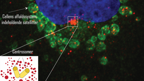 In a newly described waste disposal sorting called doryphagia so-called satellites (seen in red) are absorbed into the cell's waste system (seen in green). The inserted image shows the so-called centrosomes in the cell, surrounded by the satellites.
