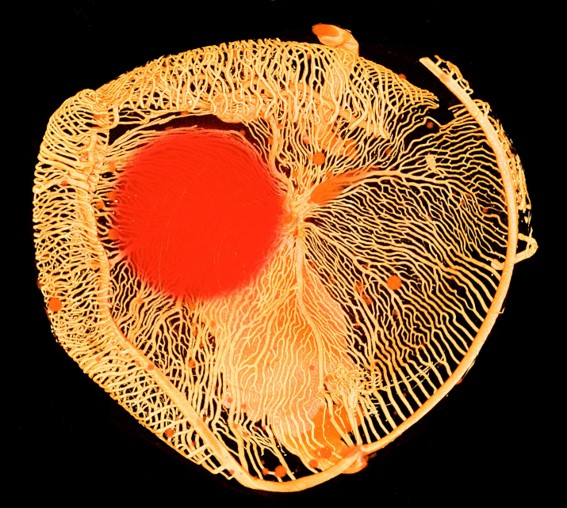 The picture shows a scan of an eye from the Antarctic ice fish. Researchers are specifically interested in the fish because its blood is missing the protein hemoglobin that normally transports oxygen in the body and colors the blood red.